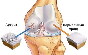 picture-osteoarthritis-healthy-cartilage